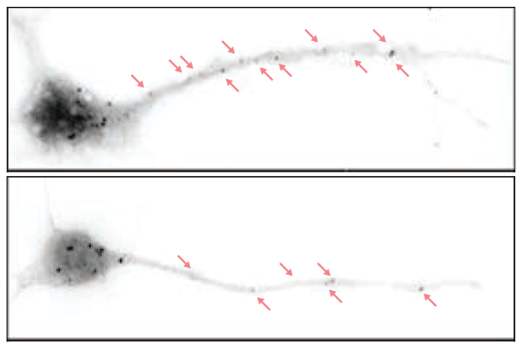 Two comparative images of neurons with red arrows.